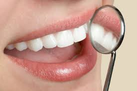 fogászati kép